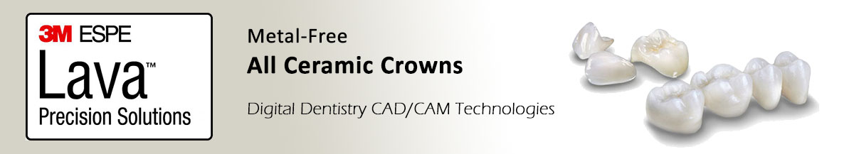 All Ceramic Dental Crowns
