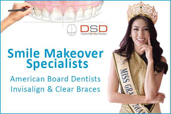 smile-makeover dental specialists