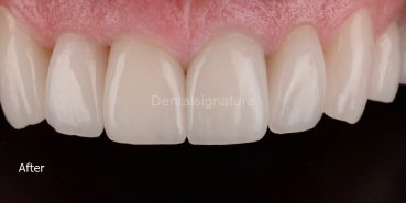 Case Gallery - Dental signature Clinic