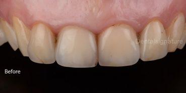Case Gallery - Dental signature Clinic