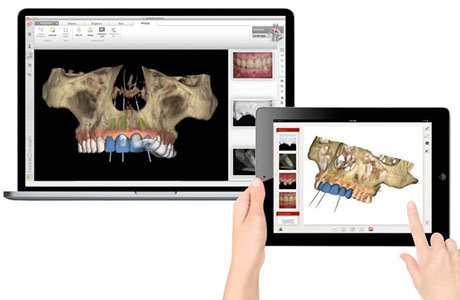 Digital Implant Planning