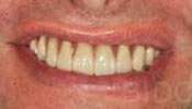 All-on-5- Dental Implant Photo After Case 2