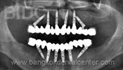 All-on-6 Dental Implant X-ray Case 3