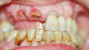 All-on-6 Dental Implant Photo Before Case 4