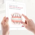 Immediate Function Dental Implants